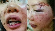 Asian female victim of black brute